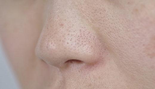 若いのに鼻の毛穴開きすぎ!いちご鼻・目立つ開き毛穴をプチプラで治す