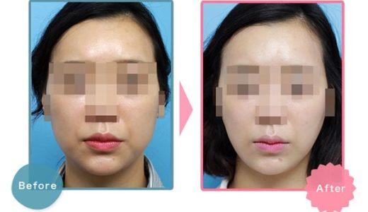 BNLS注射(小顔注射)が安いおすすめの美容クリニック!BNLSアルティメットの効果が凄い【鼻・顎・まぶた】
